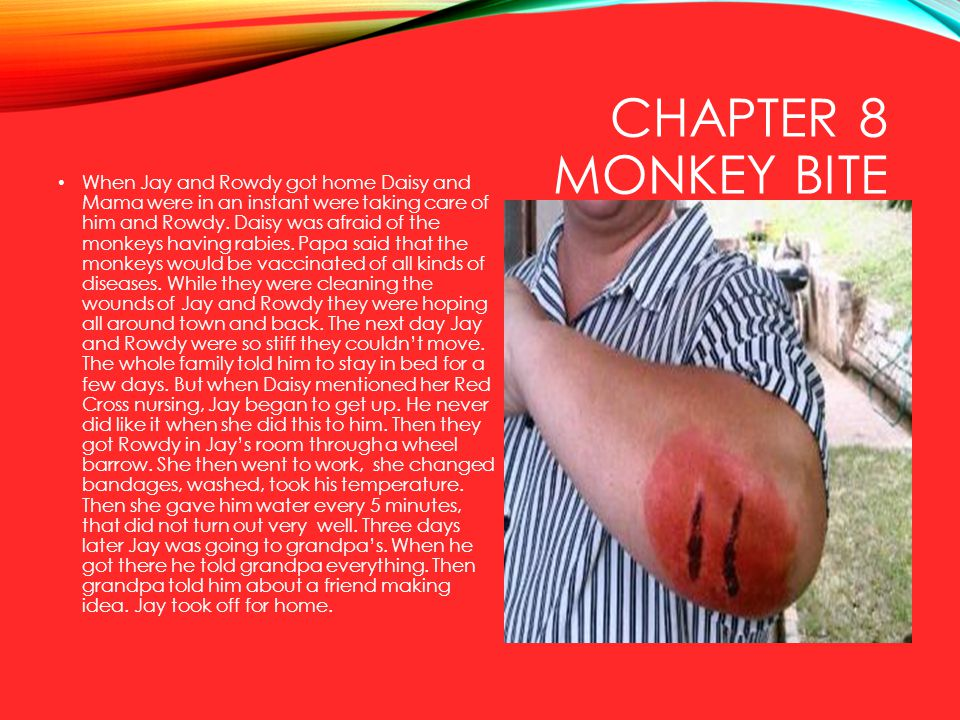 Chapter 8 Monkey Bite