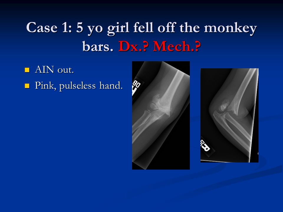 Case 1: 5 yo girl fell off the monkey bars. Dx. Mech.