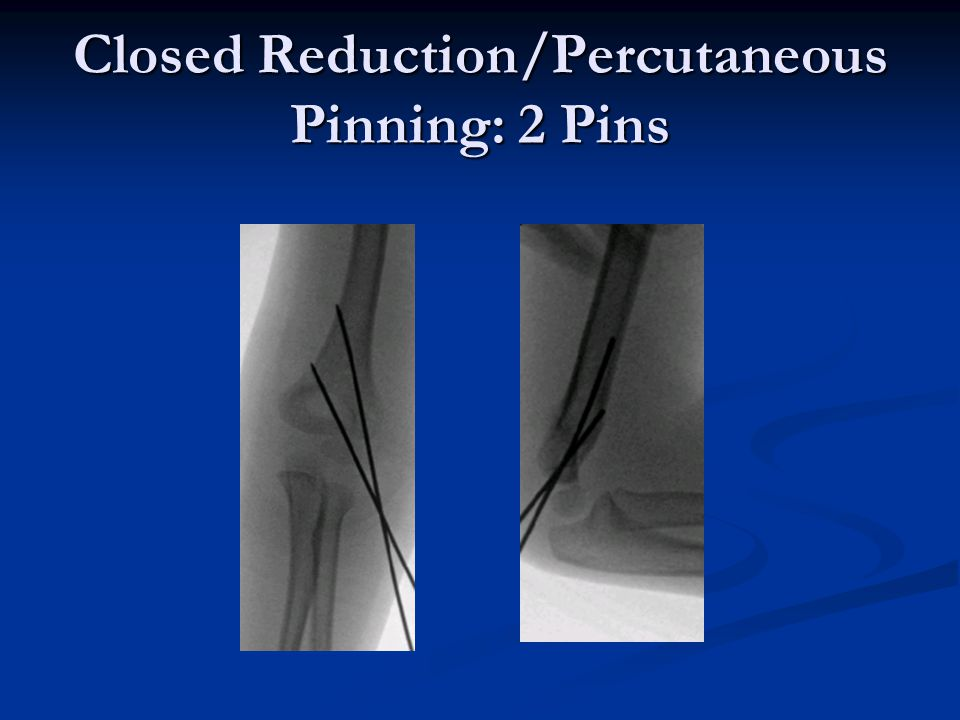 Closed Reduction/Percutaneous Pinning: 2 Pins