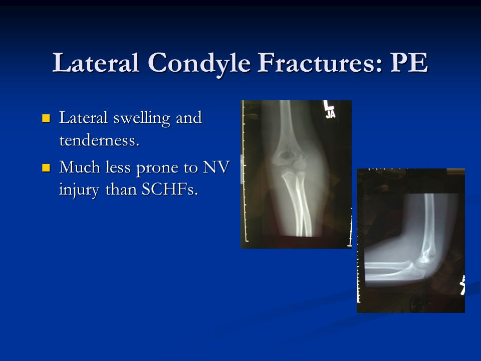 Lateral Condyle Fractures: PE