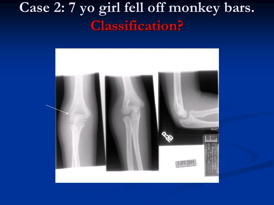 Case 2: 7 yo girl fell off monkey bars. Classification