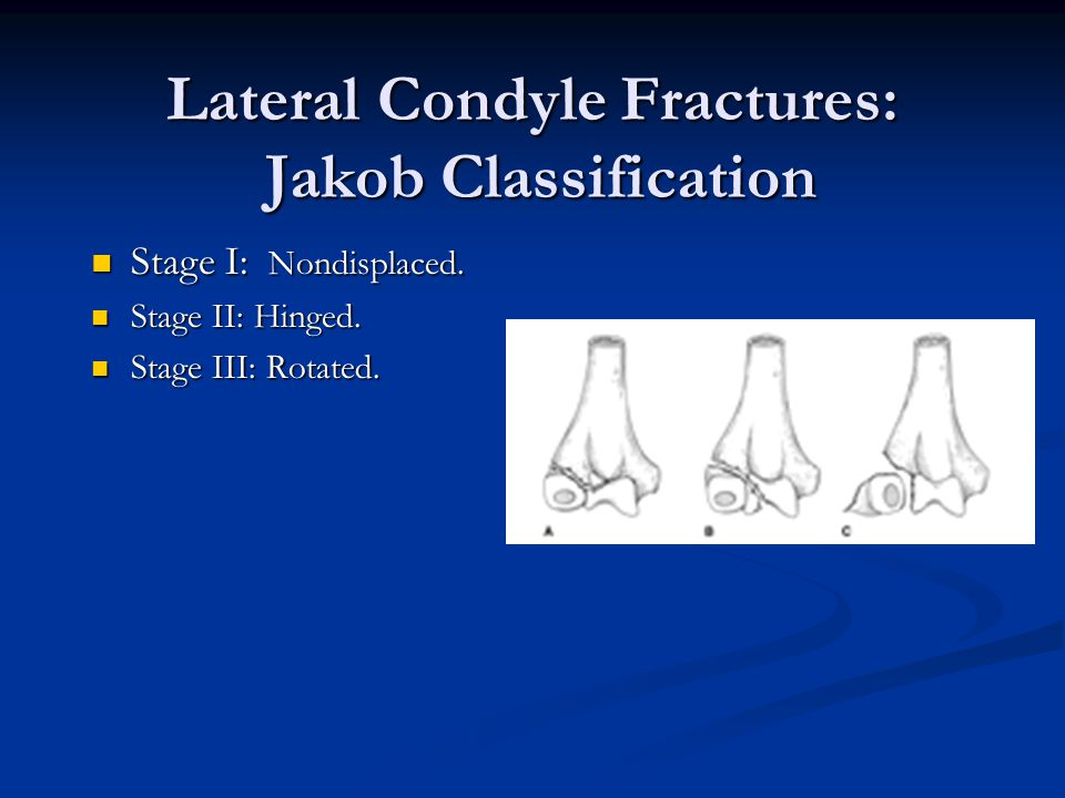 Lateral Condyle Fractures: Jakob Classification