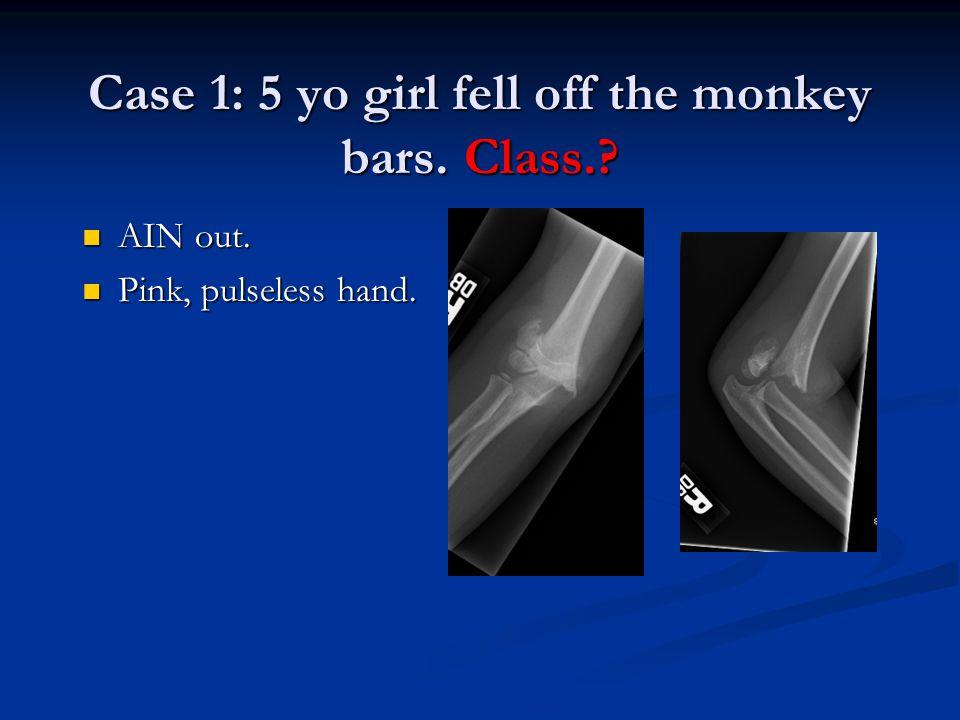 Case 1: 5 yo girl fell off the monkey bars. Class.