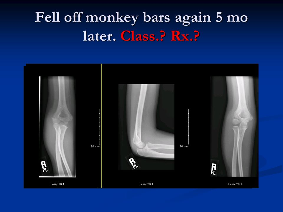 Fell off monkey bars again 5 mo later. Class. Rx.