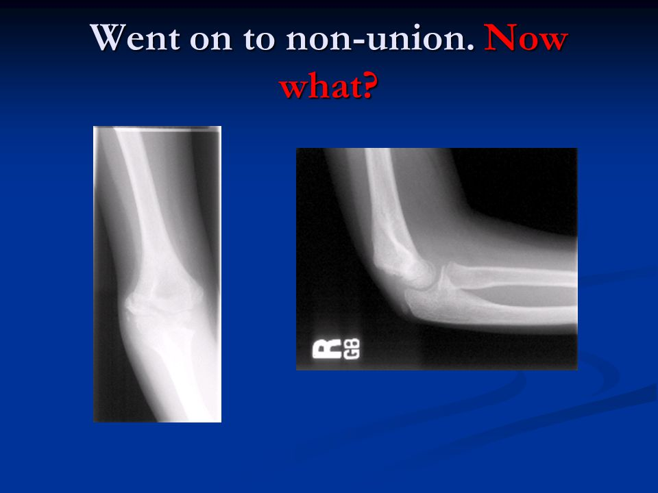 Went on to non-union. Now what