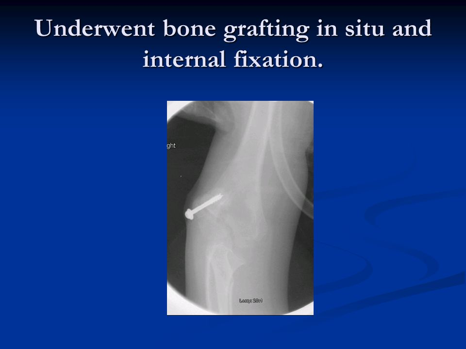 Underwent bone grafting in situ and internal fixation.