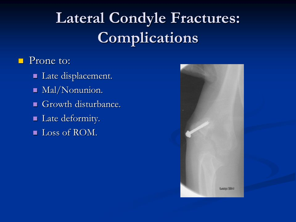 Lateral Condyle Fractures: Complications