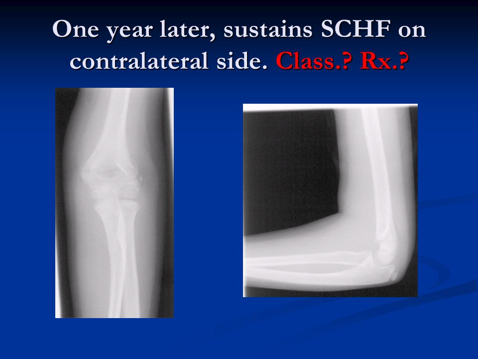One year later, sustains SCHF on contralateral side. Class. Rx.