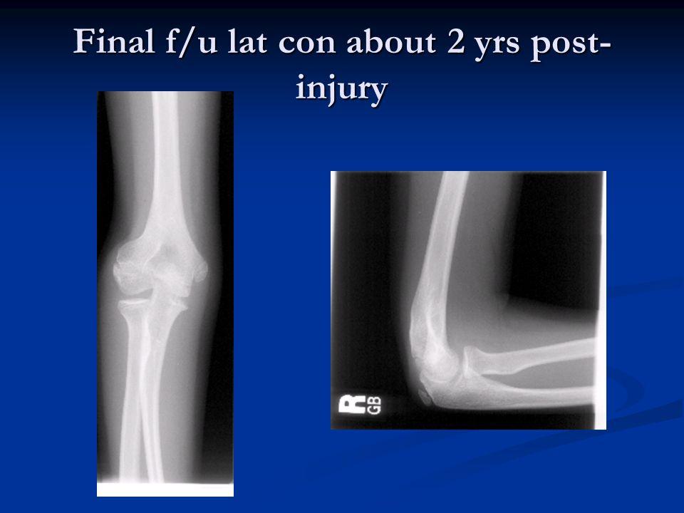 Final f/u lat con about 2 yrs post-injury