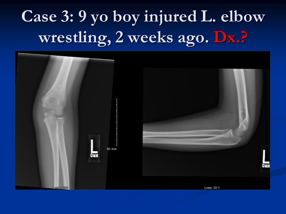 Case 3: 9 yo boy injured L. elbow wrestling, 2 weeks ago. Dx.