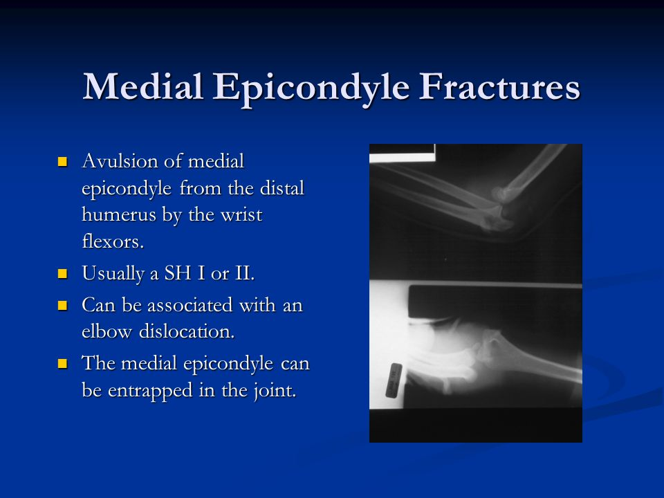 Medial Epicondyle Fractures