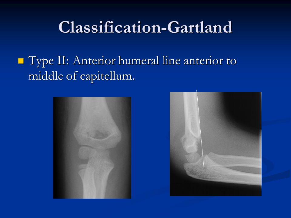 Classification-Gartland
