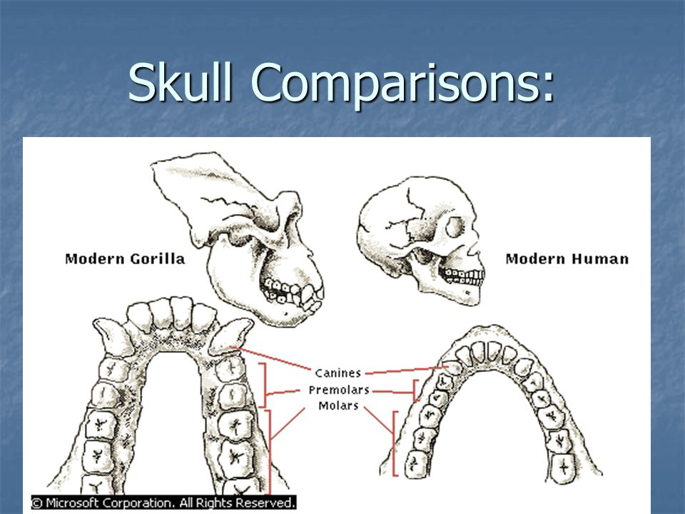 Skull Comparisons: