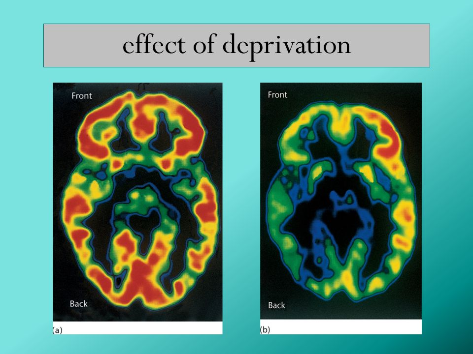 effect of deprivation 15