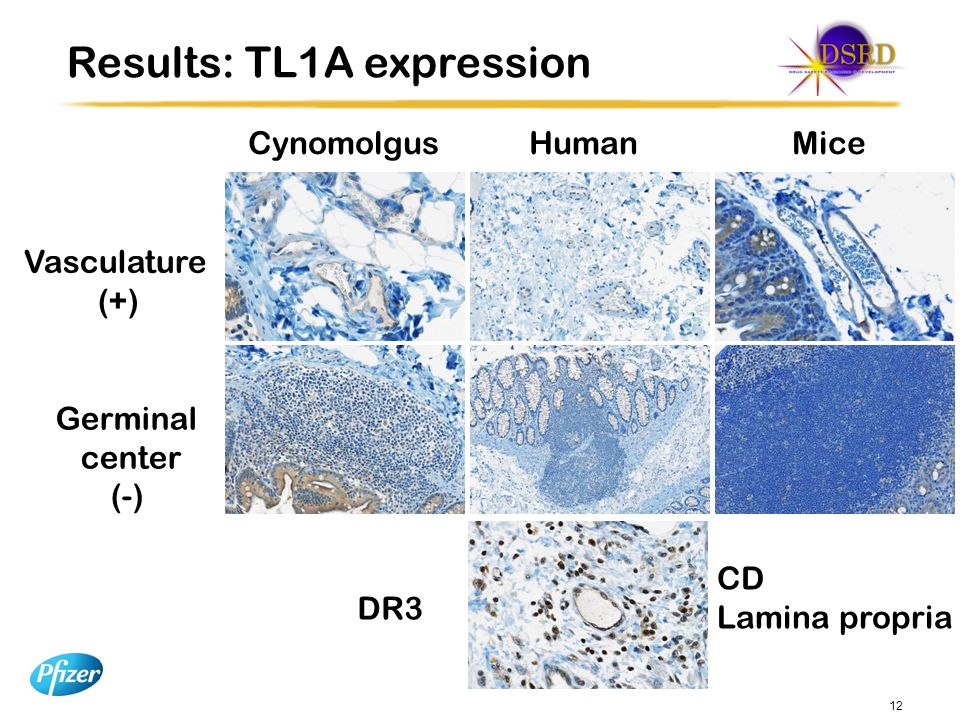Results: TL1A expression