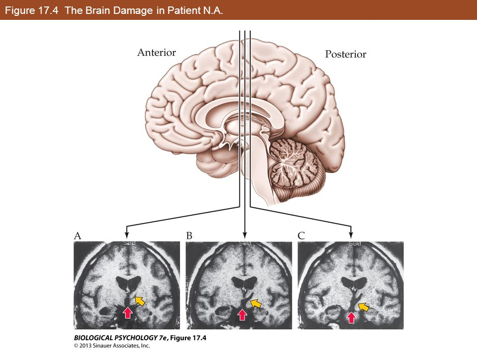 Figure 17.4 The Brain Damage in Patient N.A.