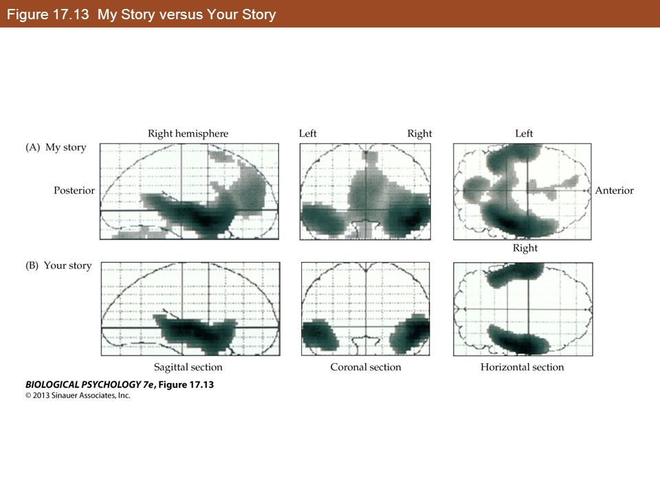 Figure 17.13 My Story versus Your Story
