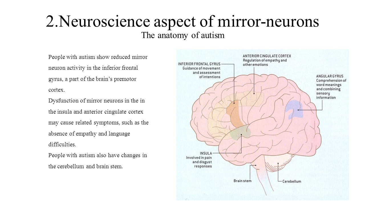 2.Neuroscience aspect of mirror-neurons The anatomy of autism
