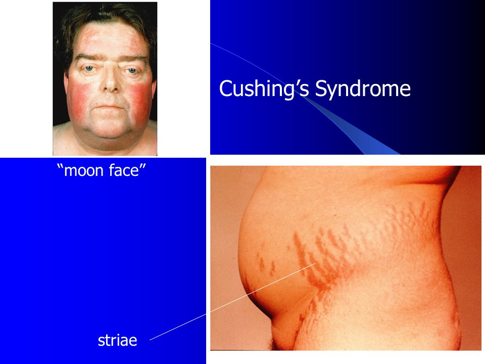 Cushing's Syndrome moon face striae