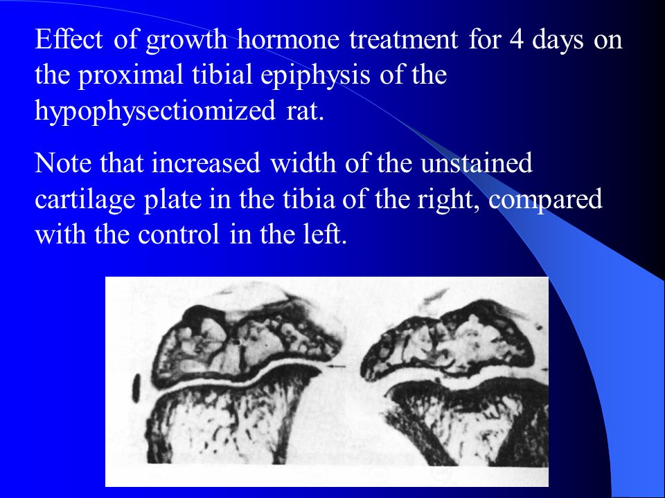 Effect of growth hormone treatment for 4 days on the proximal tibial epiphysis of the hypophysectiomized rat.