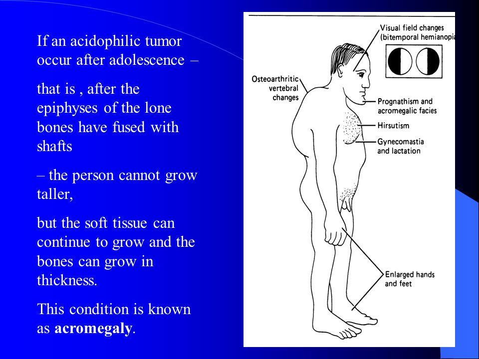 If an acidophilic tumor occur after adolescence –