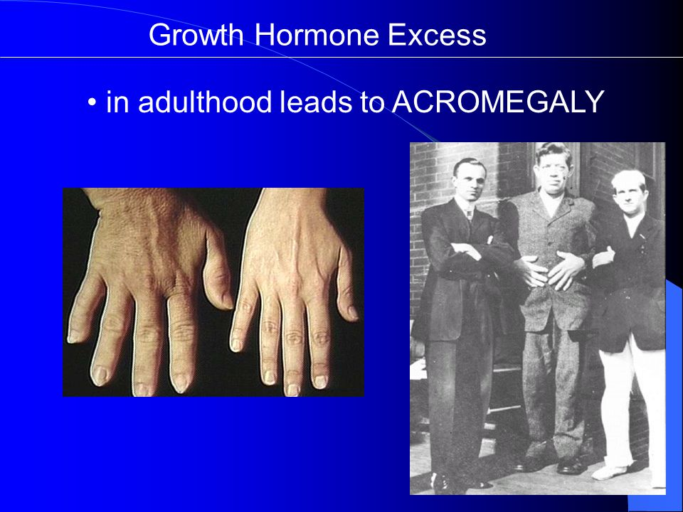 Growth Hormone Excess in adulthood leads to ACROMEGALY