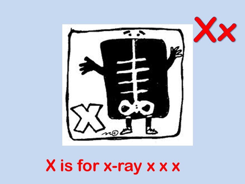Xx X is for x-ray x x x