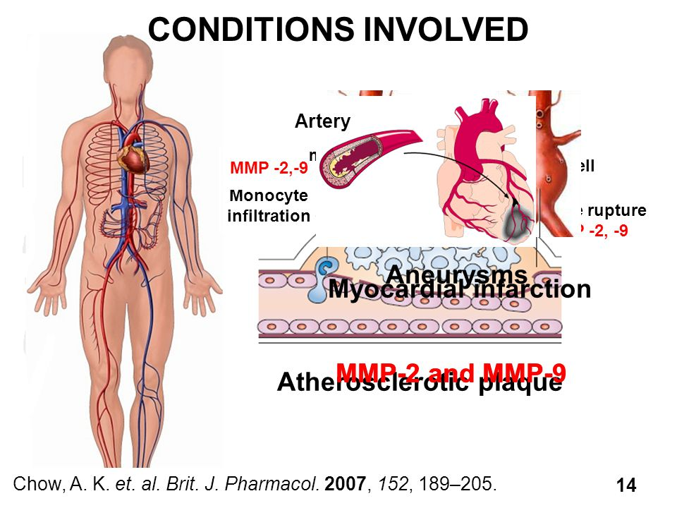 CONDITIONS INVOLVED Aneurysms Myocardial infarction MMP-2 and MMP-9