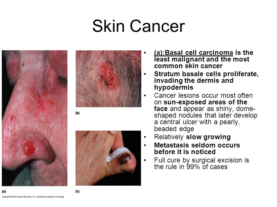Skin Cancer (a):Basal cell carcinoma is the least malignant and the most common skin cancer.