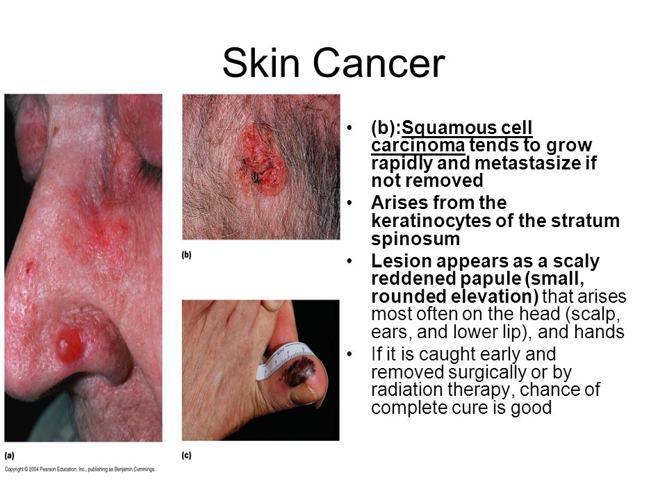 Skin Cancer (b):Squamous cell carcinoma tends to grow rapidly and metastasize if not removed. Arises from the keratinocytes of the stratum spinosum.