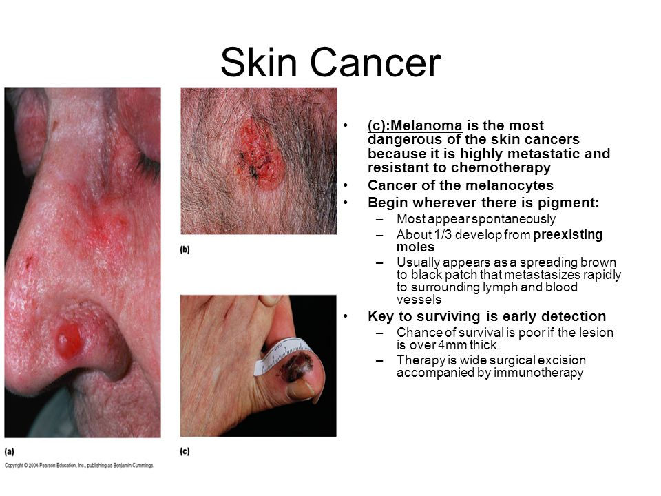 Skin Cancer (c):Melanoma is the most dangerous of the skin cancers because it is highly metastatic and resistant to chemotherapy.