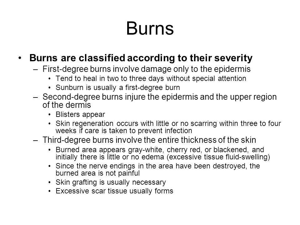 Burns Burns are classified according to their severity