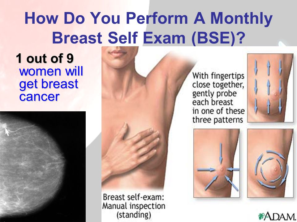 How Do You Perform A Monthly Breast Self Exam (BSE)