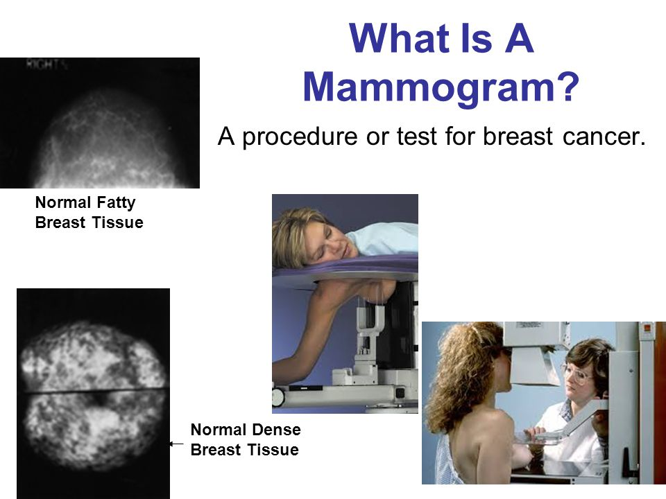 What Is A Mammogram A procedure or test for breast cancer.