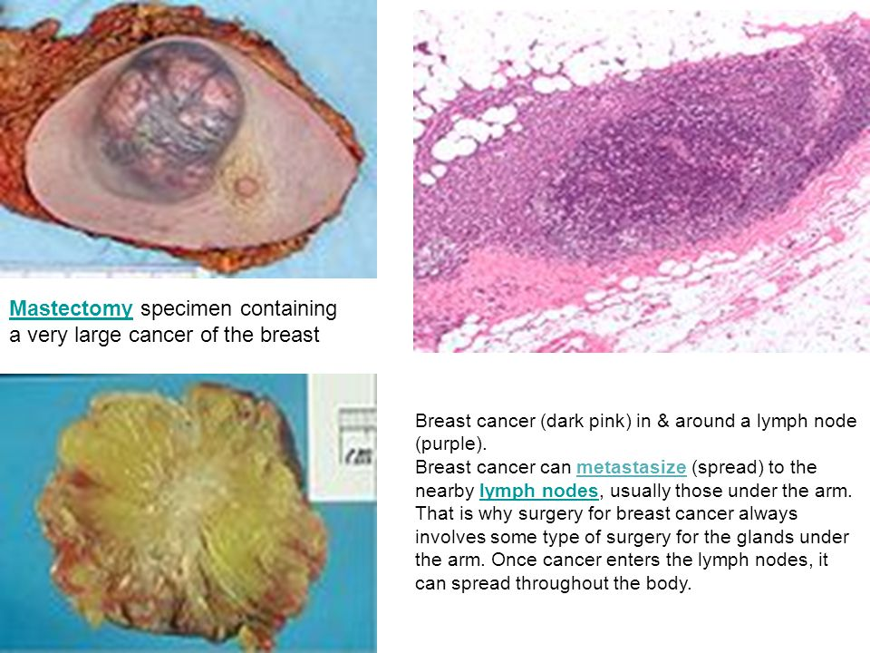Mastectomy specimen containing a very large cancer of the breast