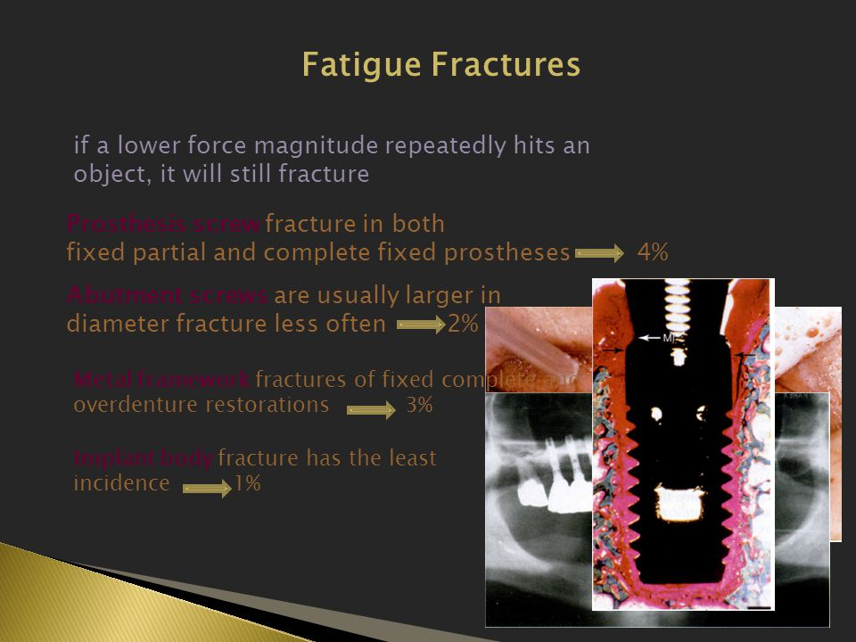 Fatigue Fractures if a lower force magnitude repeatedly hits an object, it will still fracture. Prosthesis screw fracture in both.