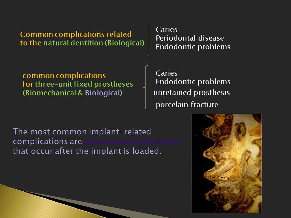 Caries Periodontal disease. Endodontic problems. Common complications related. to the natural dentition (Biological)