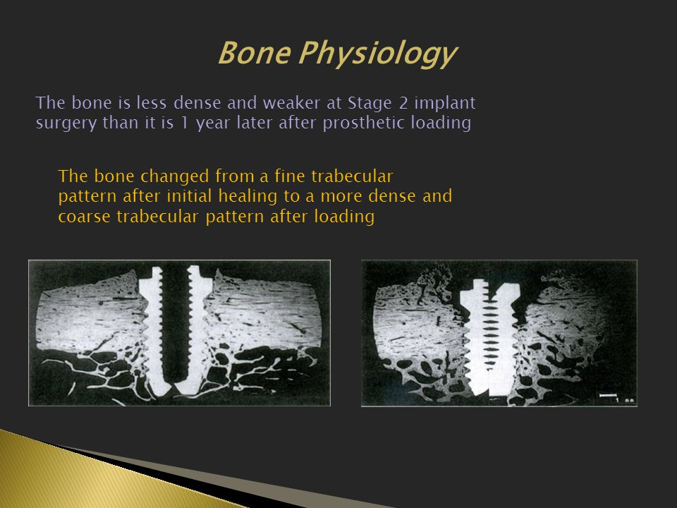 Bone Physiology The bone is less dense and weaker at Stage 2 implant