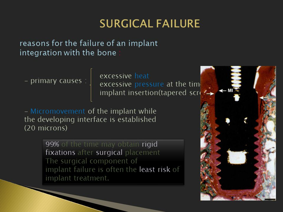 SURGICAL FAILURE reasons for the failure of an implant