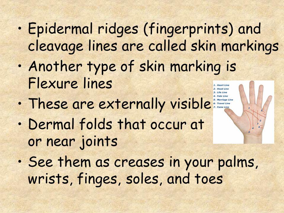 Epidermal ridges (fingerprints) and cleavage lines are called skin markings