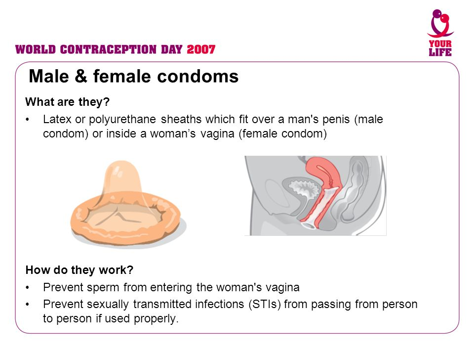 Male & female condoms What are they
