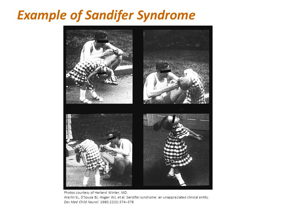 Example of Sandifer Syndrome