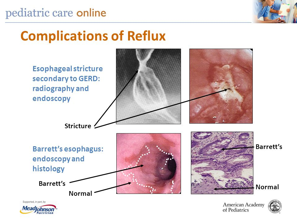 Complications of Reflux