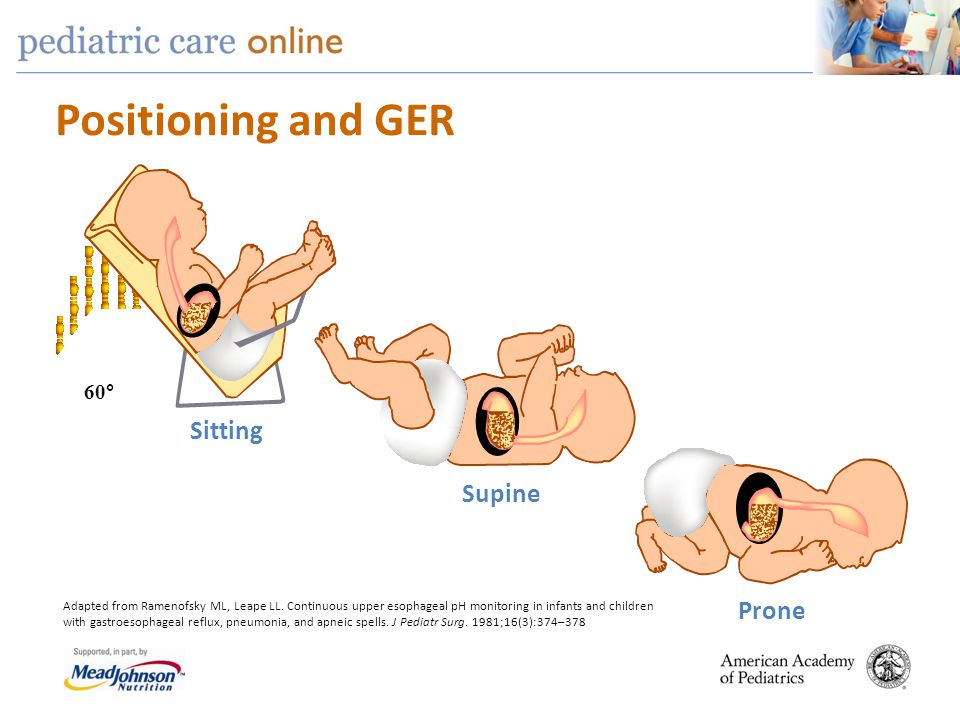 Positioning and GER Sitting Supine Prone 60°