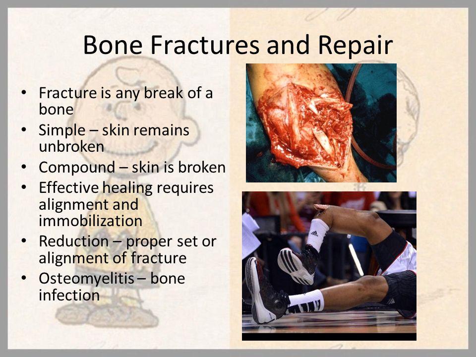 Bone Fractures and Repair
