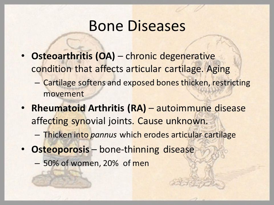 Bone Diseases Osteoarthritis (OA) – chronic degenerative condition that affects articular cartilage. Aging.