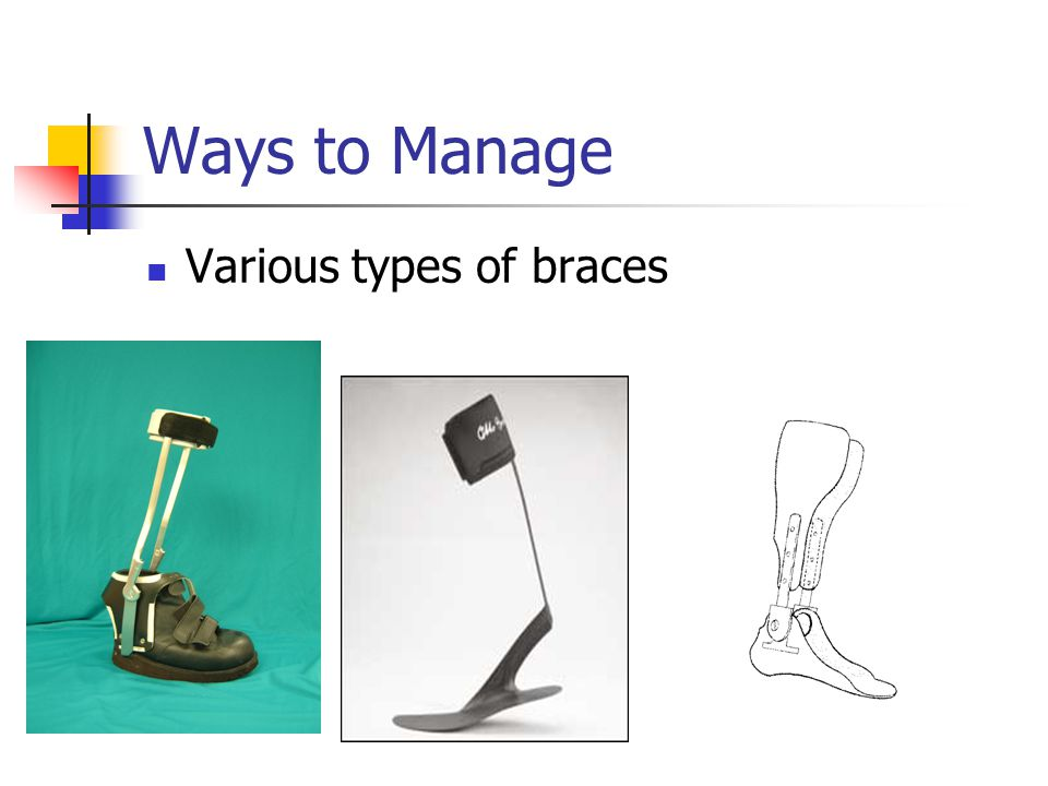Ways to Manage Various types of braces