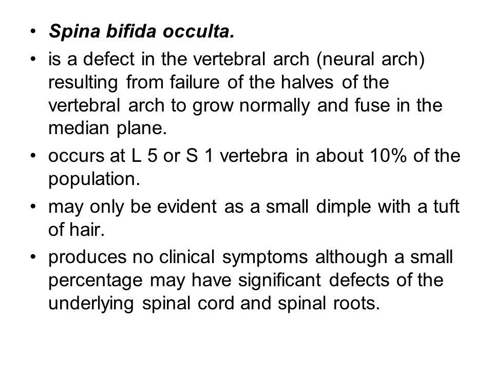 Spina bifida occulta.