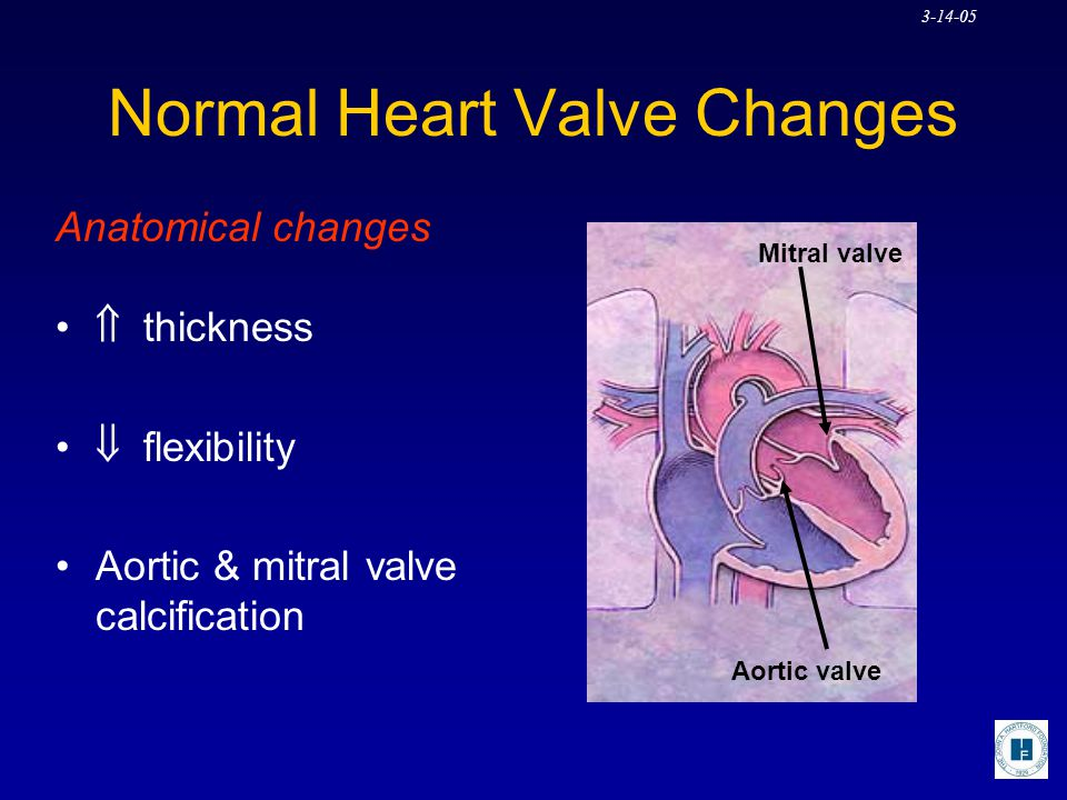 Normal Heart Valve Changes