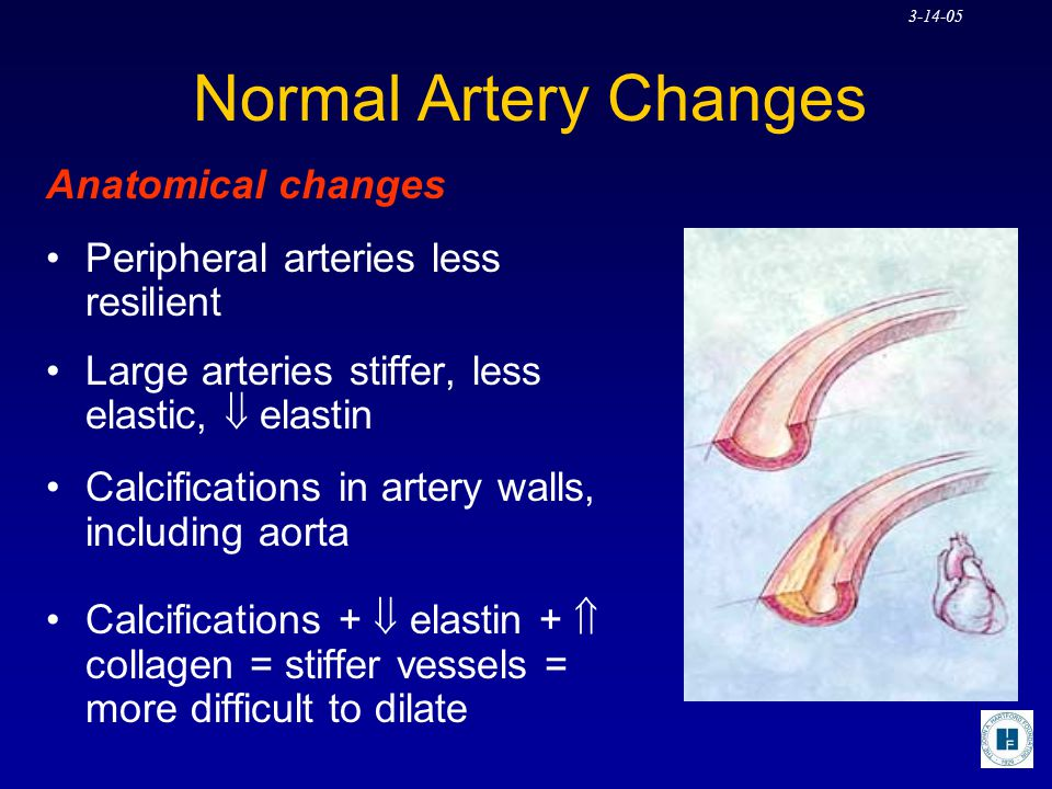 Normal Artery Changes Anatomical changes